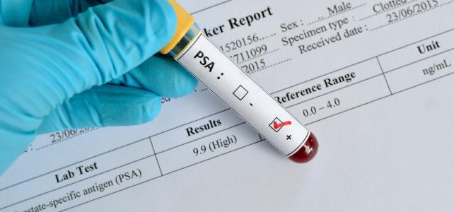 Meestearst: kodune PSA test ei tööta